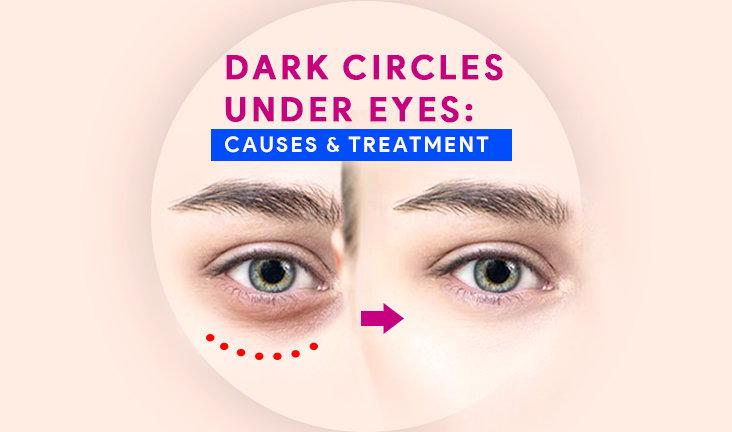 Dark Circles Under Eyes: Causes & Treatment