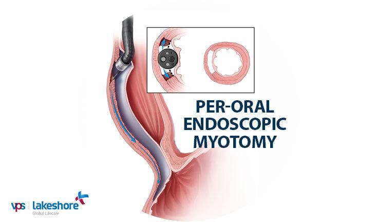 Per-oral Endoscopic Myotomy (POEM) for Achalasia