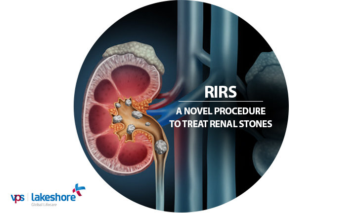 RIRS: A Novel Procedure to Treat Renal Stones
