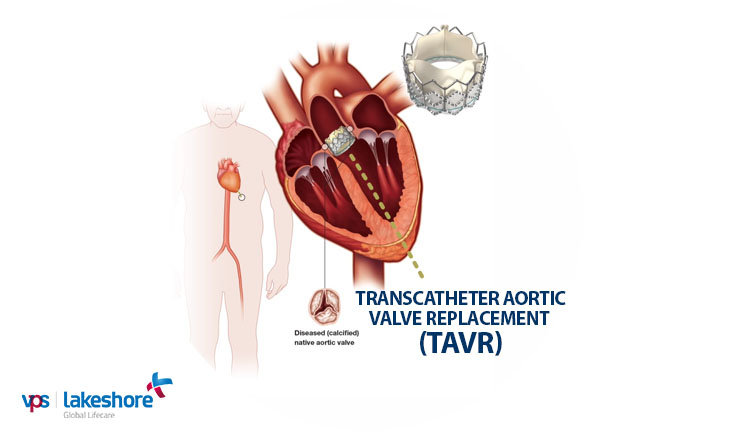 Aortic Stenosis resolved in 75 year old patient through TAVR