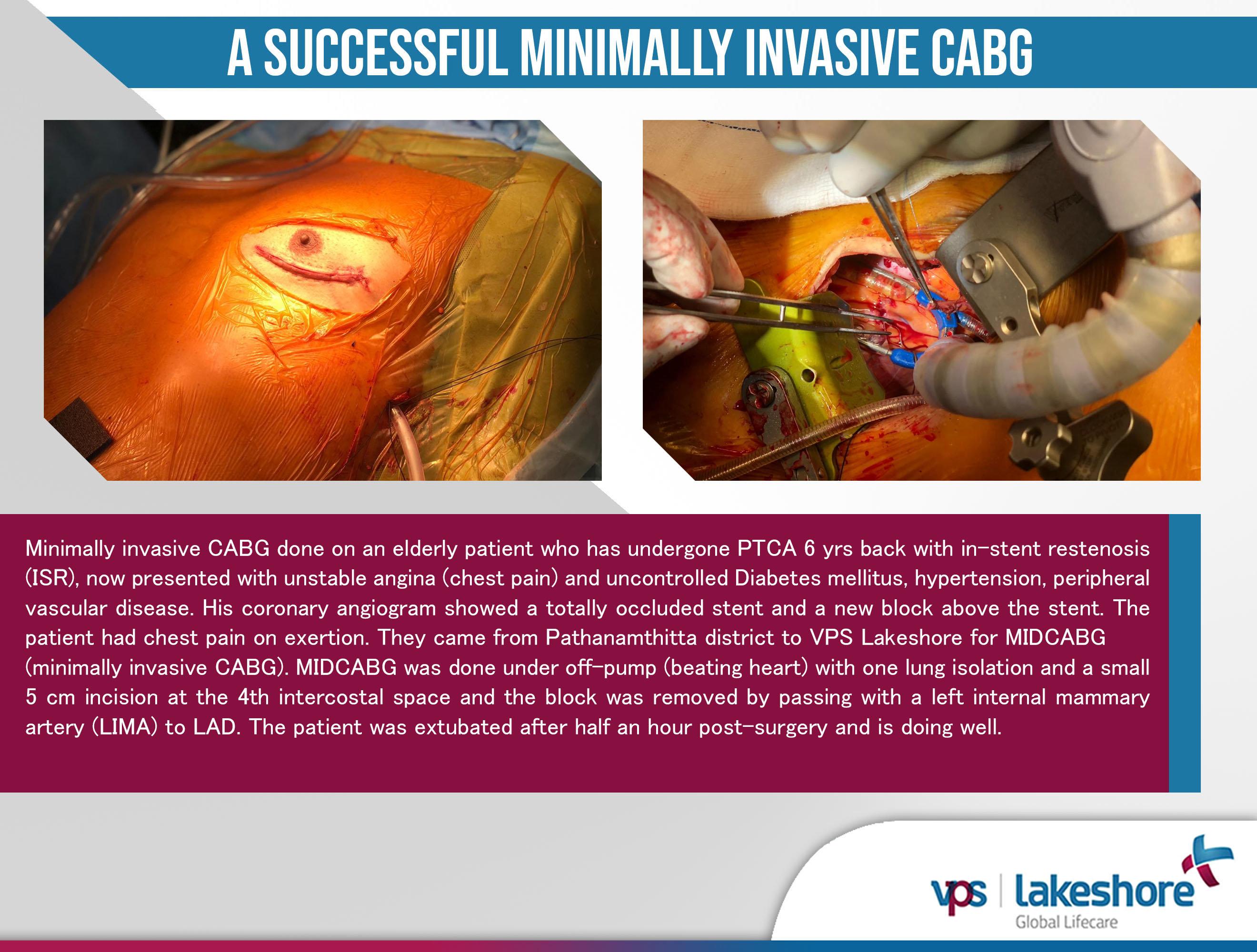 A successful Minimally Invasive CABG