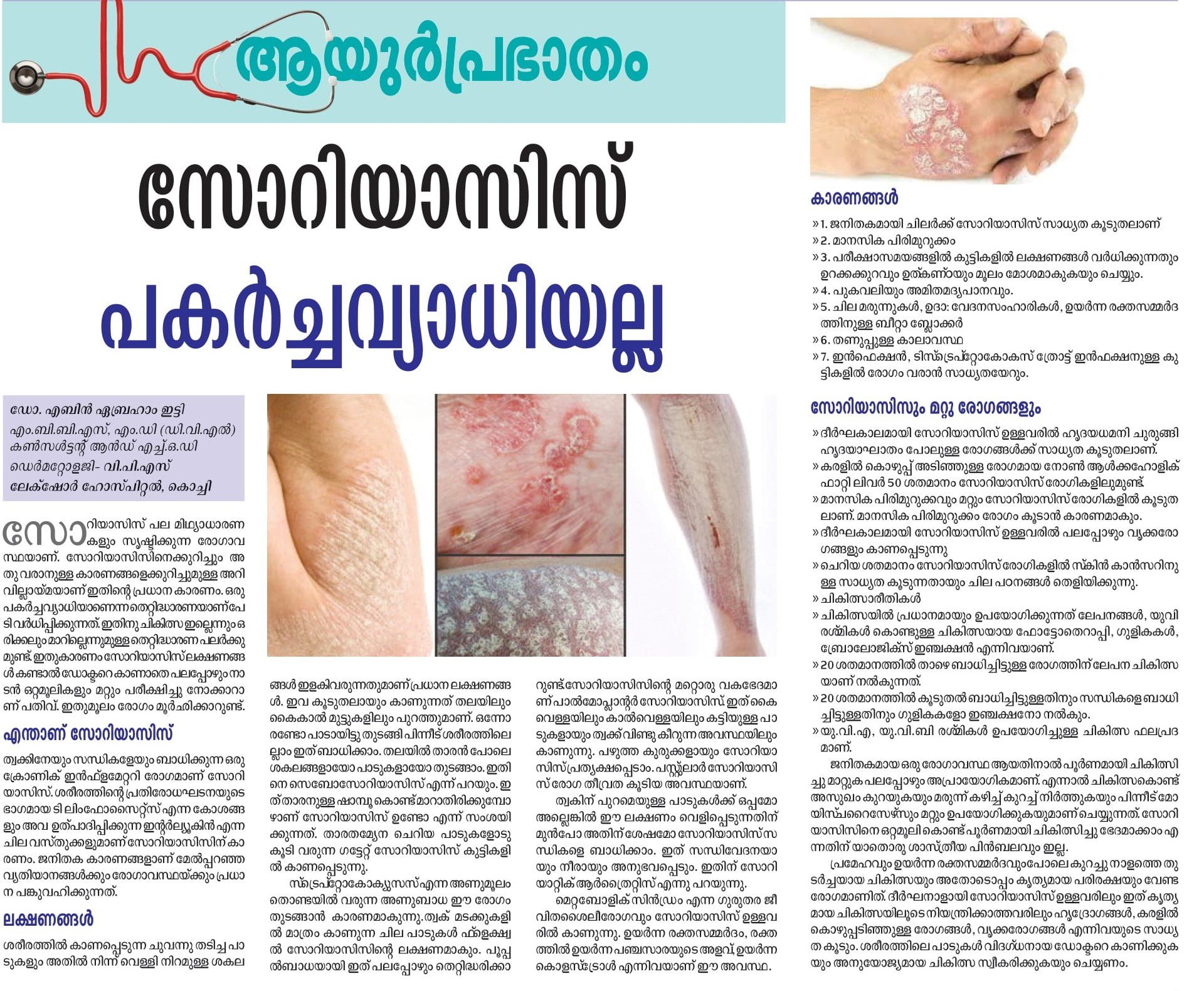 uploads/news/psoriasis-symptomsandtreatment-9CZaNag0WhXezMG.jpg