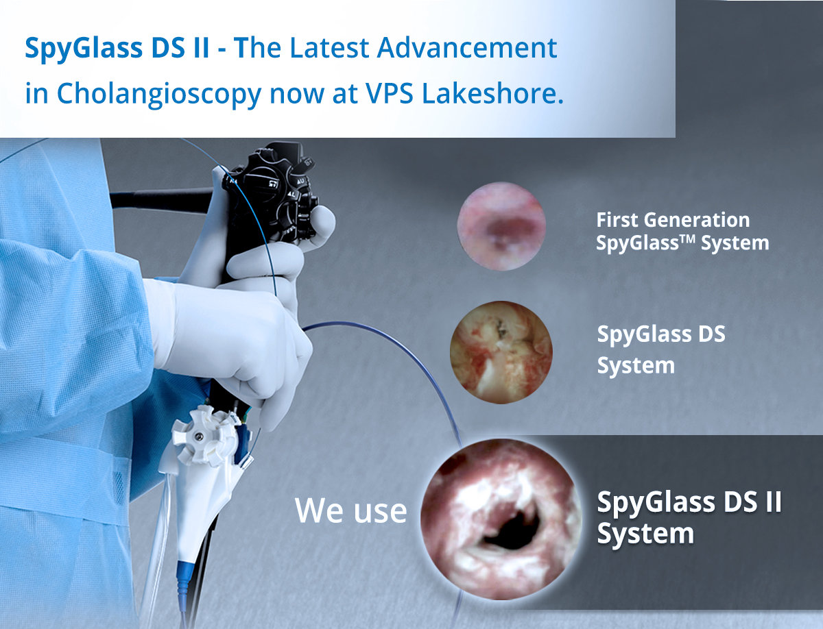 Spyglass DS II - The latest Advancement in Cholangioscopy now at VPS Lakeshore
