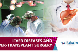 uploads/video/liverdiseasesandliver-transplantsurgery-vpslakeshore-cpeghjNeAuUfB91.jpg